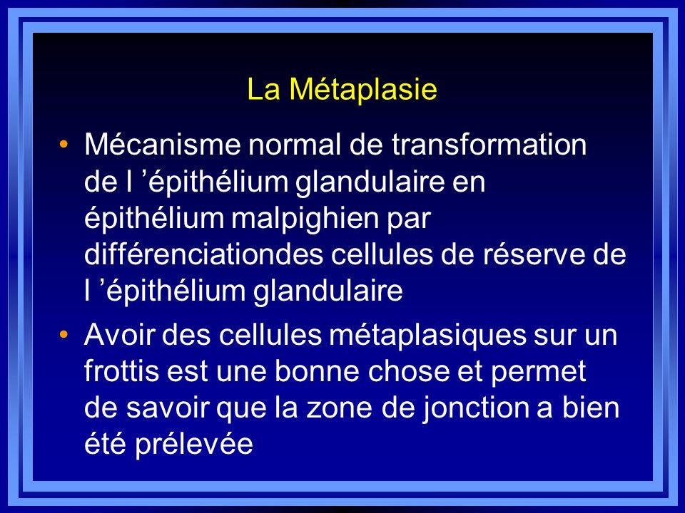 La Métaplasie Mécanisme normal de transformation de l épithélium glandulaire en épithélium malpighien par différenciationdes cellules de réserve de l
