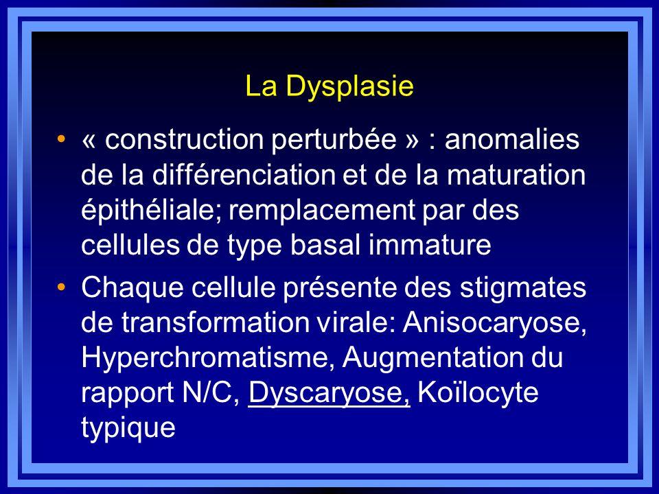 La Dysplasie « construction perturbée » : anomalies de la différenciation et de la maturation épithéliale; remplacement par des cellules de type basal
