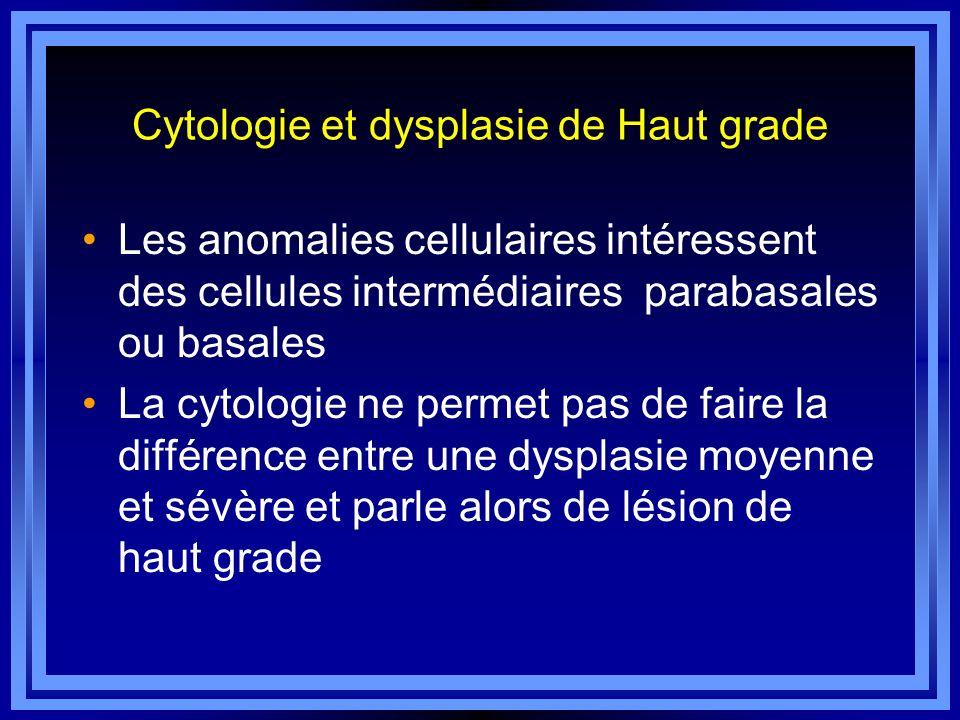 Cytologie et dysplasie de Haut grade Les anomalies cellulaires intéressent des cellules intermédiaires parabasales ou basales La cytologie ne permet p