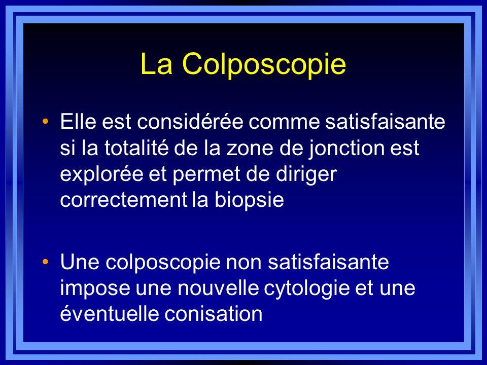 La Colposcopie Elle est considérée comme satisfaisante si la totalité de la zone de jonction est explorée et permet de diriger correctement la biopsie