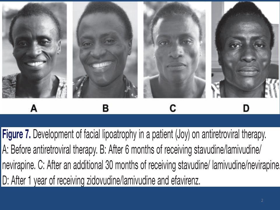 Méthodologie * Suivi clinique (trimestriel): TA, IMC, mesures anthropométriques * Suivi biologique semestriel: Chol (T, LDL, HDL), glycémie, lactates, hémogramme, ASAT/ALAT, créatininémie, CD4, charge virale * Traitement ARV en accord avec recommandations nationales * Définition Lipodystrophie selon les critères de Carr ( Lancet 2003 ); * Définition Syndrome métabolique IDF