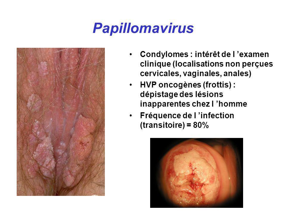 Papillomavirus Condylomes : intérêt de l examen clinique (localisations non perçues cervicales, vaginales, anales) HVP oncogènes (frottis) : dépistage