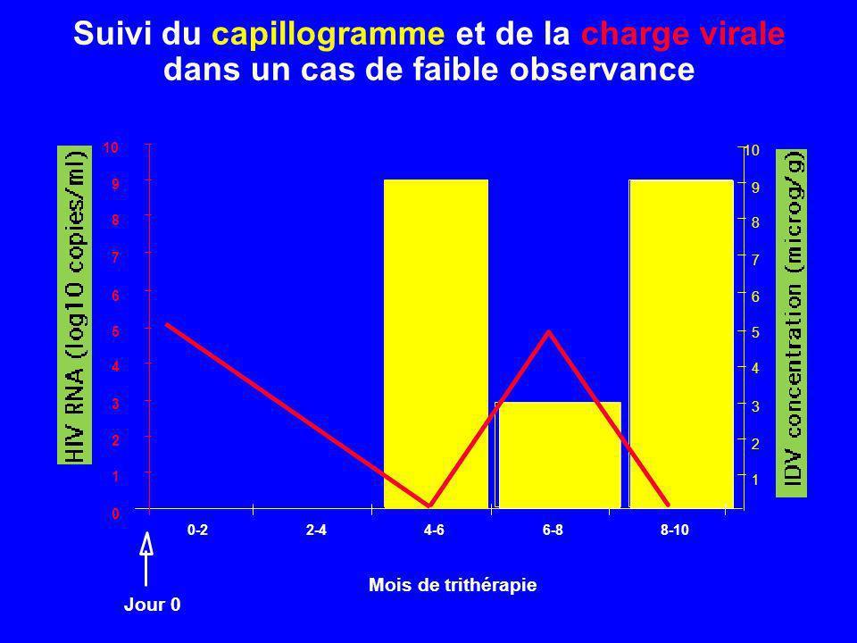 Suivi du capillogramme et de la charge virale dans un cas de faible observance 0 1 2 3 4 5 6 7 8 9 10 0-22-44-66-88-10 Mois de trithérapie 1 2 3 4 5 6