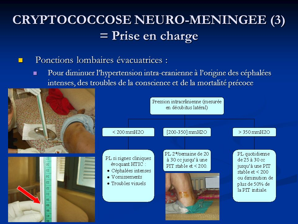 CRYPTOCOCCOSE NEURO-MENINGEE (3) = Prise en charge Ponctions lombaires évacuatrices : Ponctions lombaires évacuatrices : Pour diminuer lhypertension i