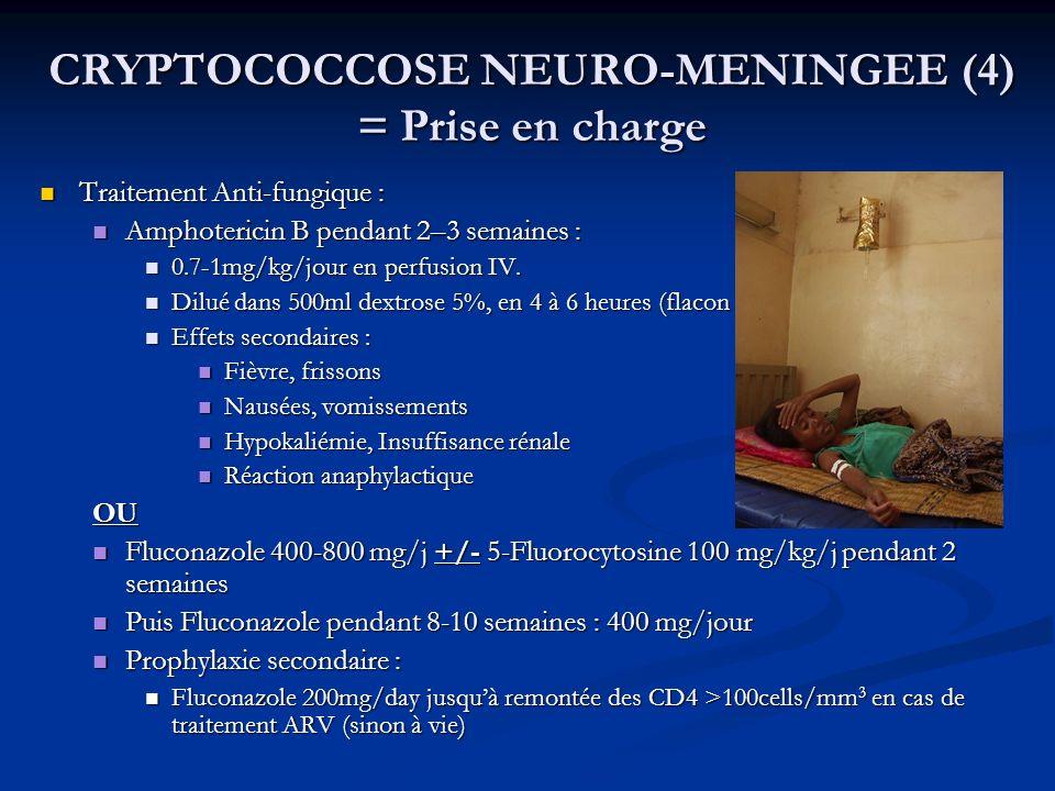 CRYPTOCOCCOSE NEURO-MENINGEE (5) = Prise en charge Traitements associés : Traitements associés : Hydratation par Sérum salé Isotonique 0.9% (1L/24hrs) Hydratation par Sérum salé Isotonique 0.9% (1L/24hrs) Hydrocortisone 50 mg IV 15 min avant Amphotéricine B Hydrocortisone 50 mg IV 15 min avant Amphotéricine B Potassium per os Potassium per os 500 mg Paracétamol avant Amphotéricine B (réduction fièvre) 500 mg Paracétamol avant Amphotéricine B (réduction fièvre) Analgésique : Paracétamol + codéine Analgésique : Paracétamol + codéine Les corticoïdes sont contre-indiqués Les corticoïdes sont contre-indiqués