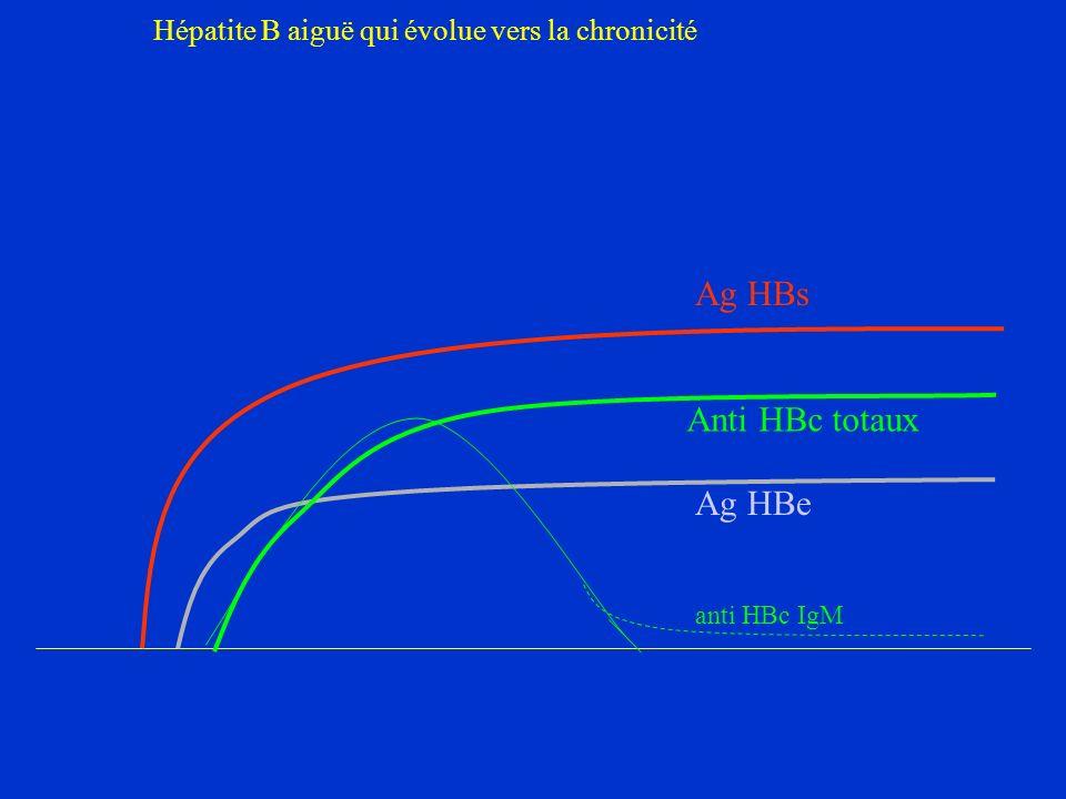 Ag HBs Anti HBc totaux Ag HBe Hépatite B aiguë qui évolue vers la chronicité anti HBc IgM
