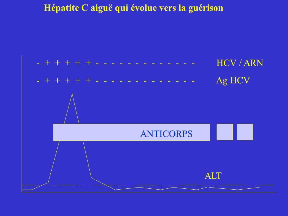 Hépatite C aiguë qui évolue vers la guérison - + + + + + - - - - - - - - - - - - - HCV / ARN - + + + + + - - - - - - - - - - - - - Ag HCV ALT ANTICORPS