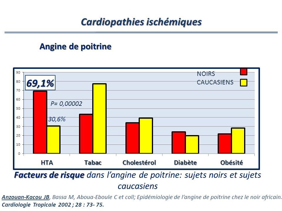 Facteurs de risque Facteurs de risque dans langine de poitrine: sujets noirs et sujets caucasiens P= 0,00002 NOIRS CAUCASIENS Cardiopathies ischémique