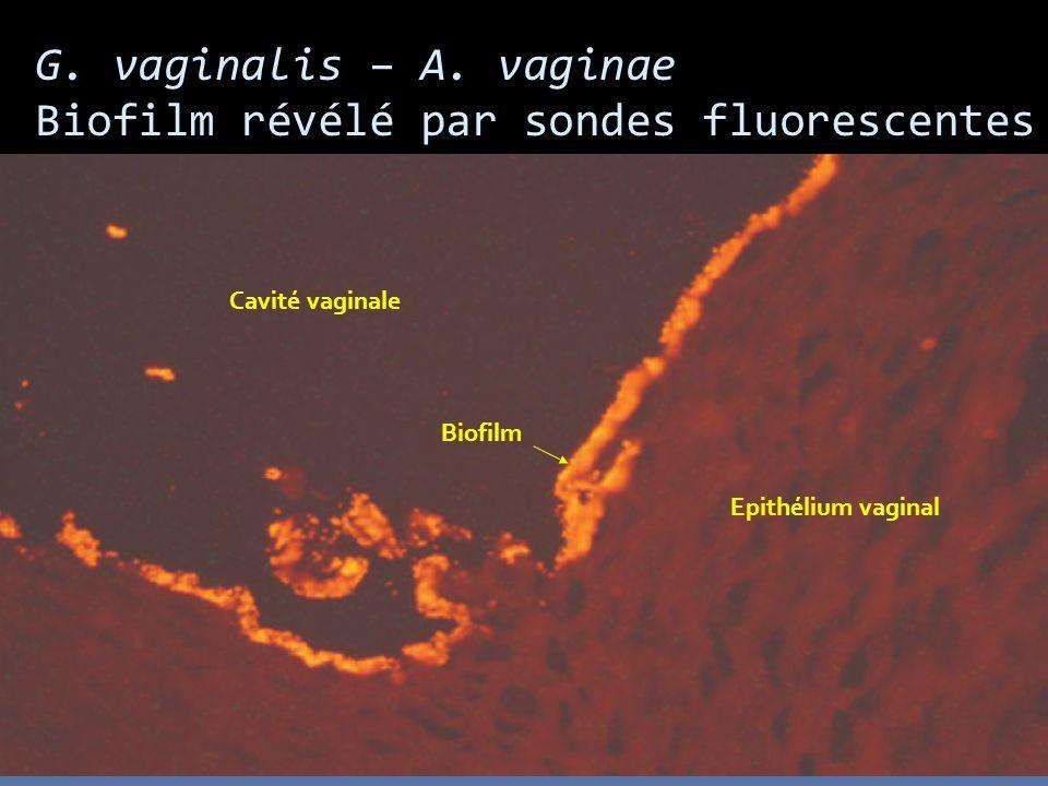 G. vaginalis – A. vaginae Biofilm révélé par sondes fluorescentes Cavité vaginale Epithélium vaginal Biofilm