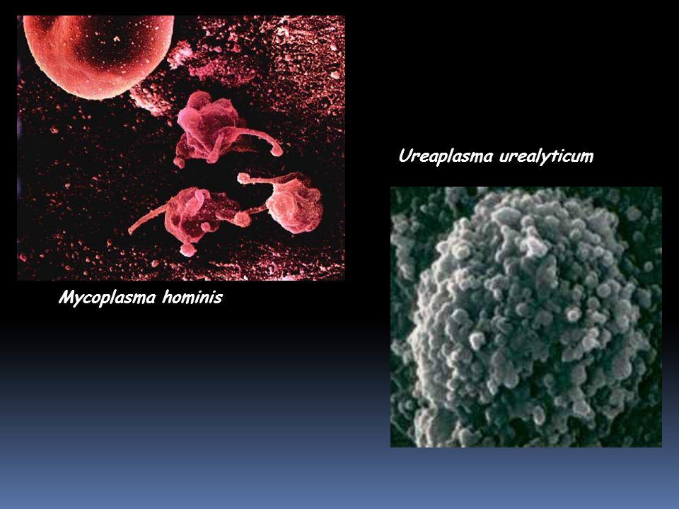 Mycoplasma hominis Ureaplasma urealyticum