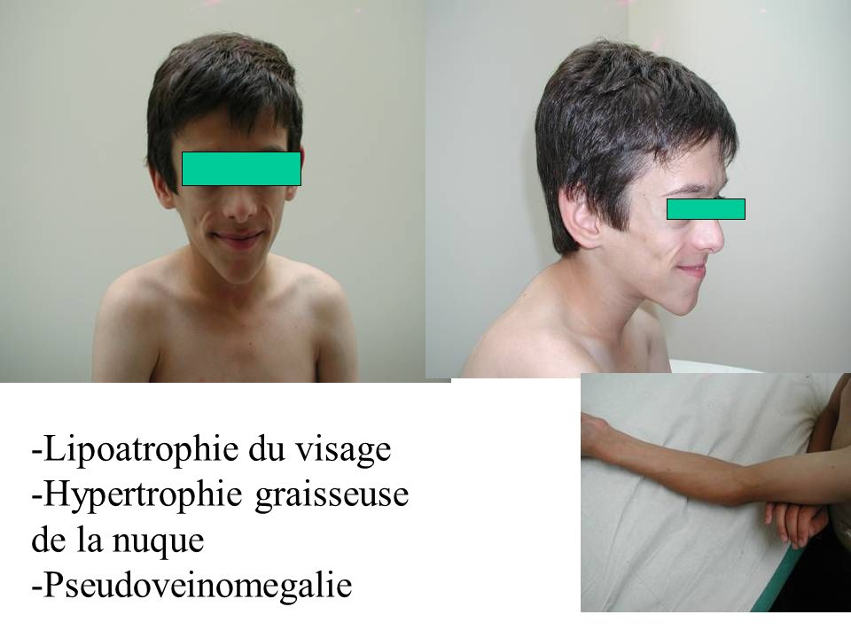 -Lipoatrophie du visage -Hypertrophie graisseuse de la nuque -Pseudoveinomegalie