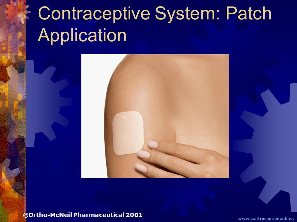 The Transdermal Contraceptive System: Patch Application ©Ortho-McNeil Pharmaceutical 2001 www.contraceptiononline. org