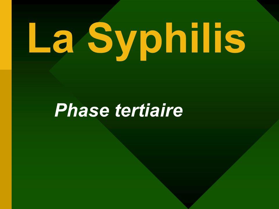 Phase tertiaire La Syphilis