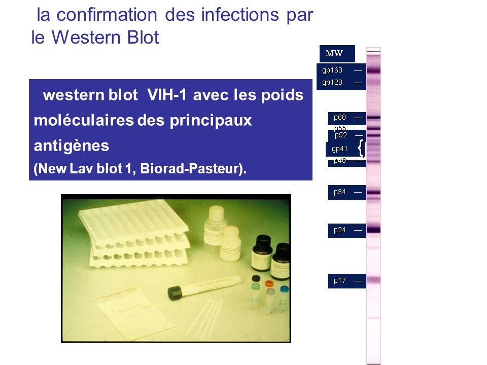 western blot VIH-1 avec les poids moléculaires des principaux antigènes (New Lav blot 1, Biorad-Pasteur). la confirmation des infections par le Wester