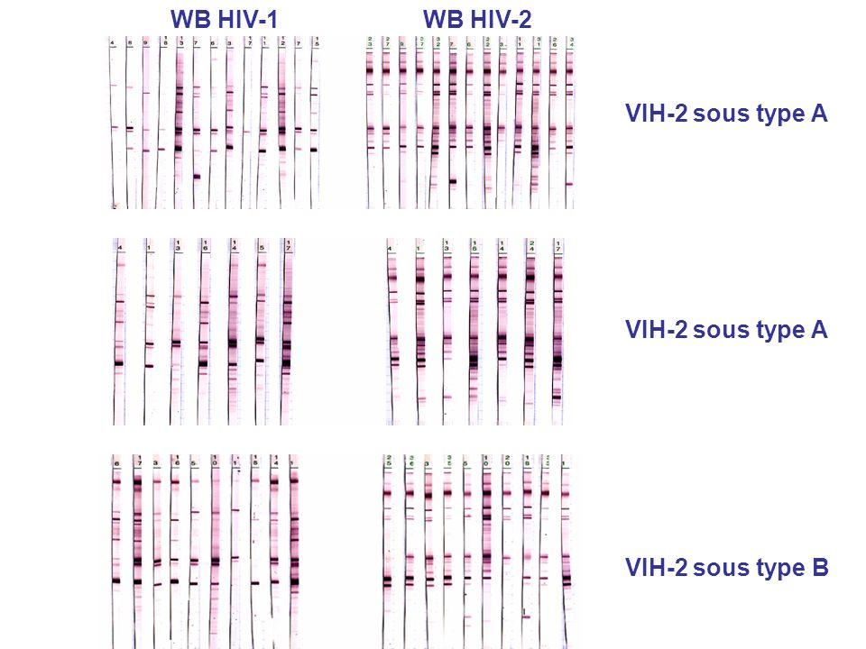 VIH-2 sous type B VIH-2 sous type A WB HIV-1WB HIV-2