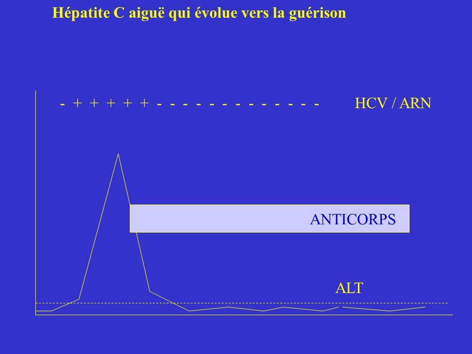 Hépatite C aiguë qui évolue vers la guérison - + + + + + - - - - - - - - - - - - - HCV / ARN ALT ANTICORPS