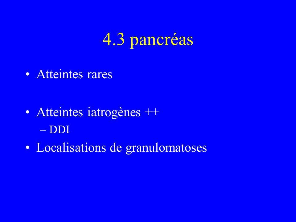 4.3 pancréas Atteintes rares Atteintes iatrogènes ++ –DDI Localisations de granulomatoses
