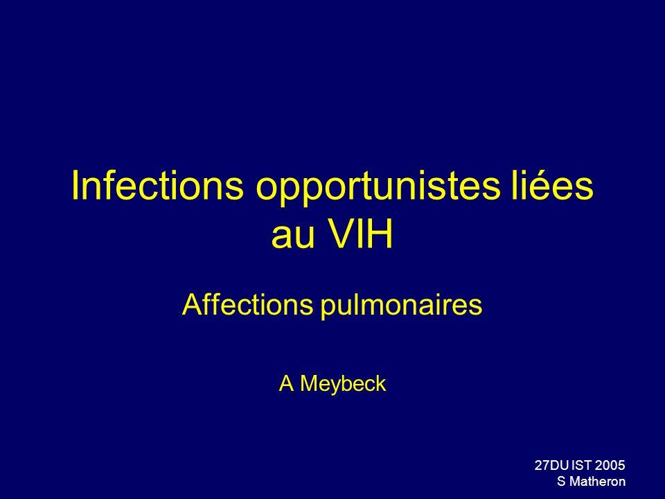27DU IST 2005 S Matheron Infections opportunistes liées au VIH Affections pulmonaires A Meybeck
