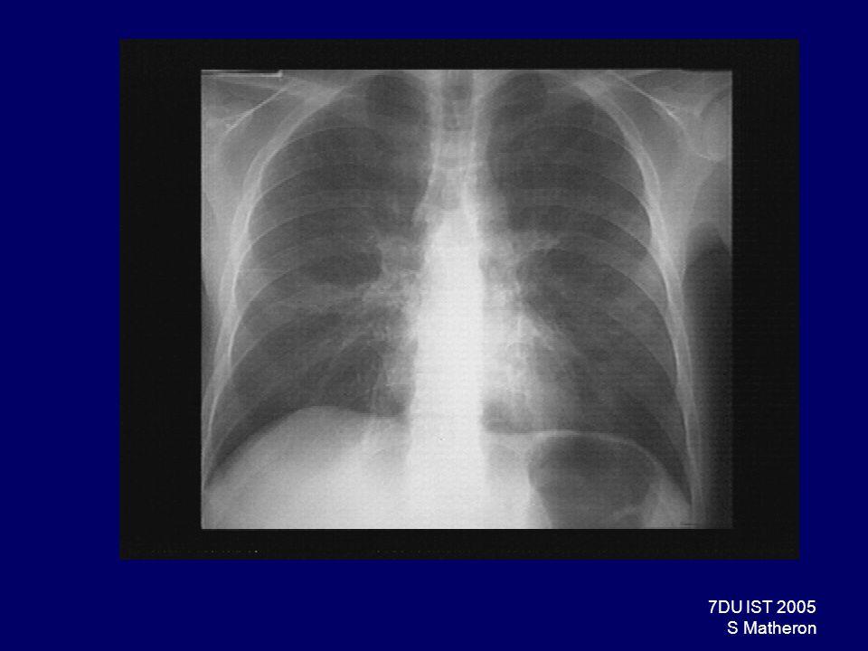 48DU IST 2005 S Matheron Pneumopathies bactériennes Causes beaucoup plus rares Nocardiose : –Principale Nocardia pathogène : Nocardia asteroïdes; bactérie à Gram +, BAAR, aérobie stricte, culture lente.