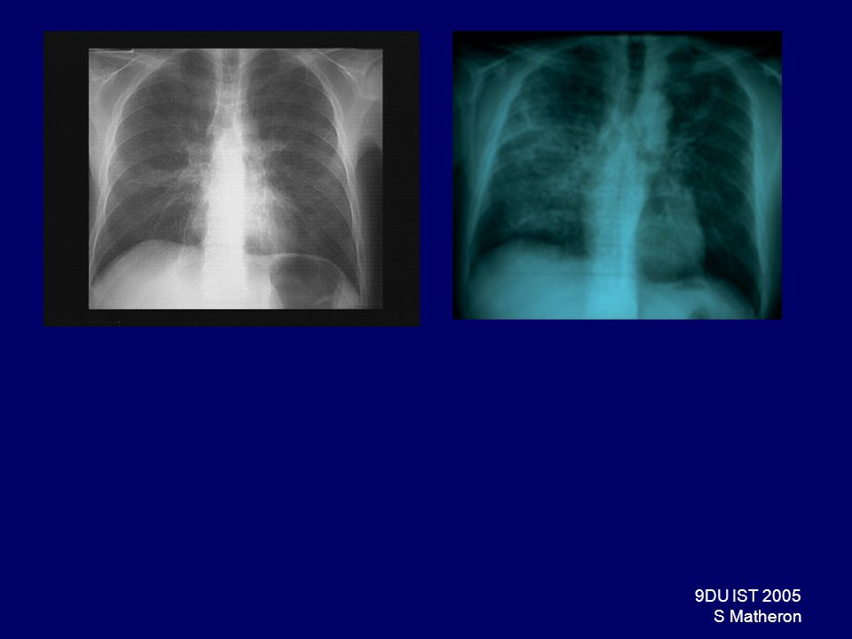 30DU IST 2005 S Matheron Pneumocystose Epidémiologie –Après 1996 : 4 cas pour 1000 PA –En 2001, en France = pathologie inaugurale de SIDA la + fréquente (35% des passages au stade SIDA) Clinique : dinstallation progressive; toux, dyspnée, fièvre Radiographie : normale, syndrome interstitiel ± alv é olaire Diagnostic: –De présomption –mise en évidence de Pneumocystis carinii ; crachat induit, fibroscopie LBA