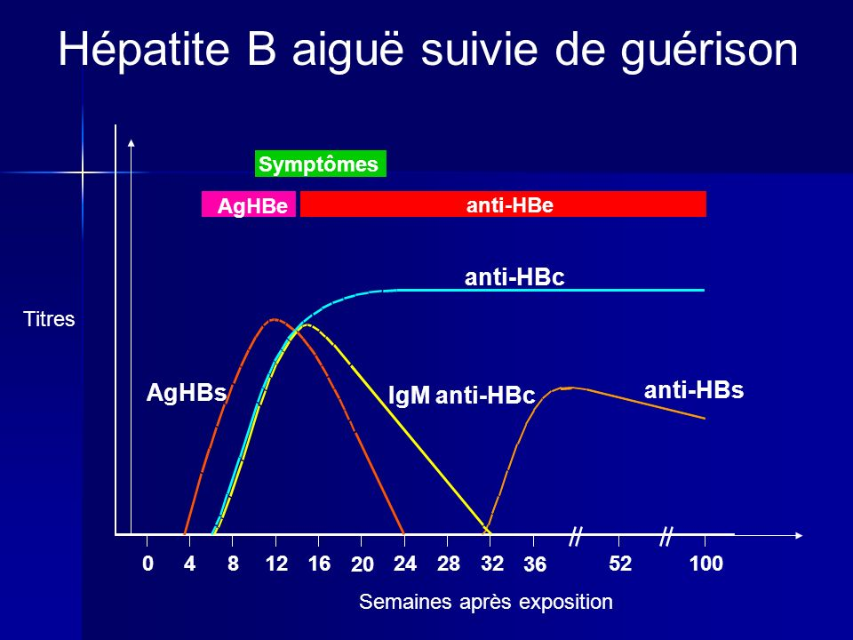Symptômes AgHBe anti-HBe anti-HBc IgM anti-HBc anti-HBs AgHBs 0481216 20 242832 36 52100 Titres Semaines après exposition Hépatite B aiguë suivie de guérison
