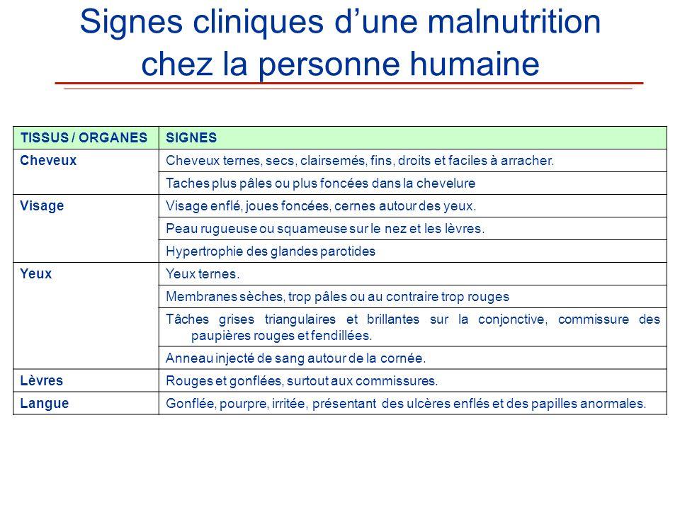 Signes cliniques dune malnutrition chez la personne humaine TISSUS / ORGANESSIGNES CheveuxCheveux ternes, secs, clairsemés, fins, droits et faciles à