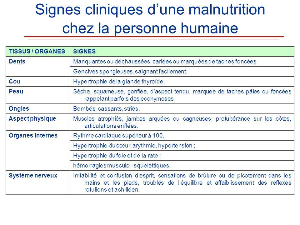 Signes cliniques dune malnutrition chez la personne humaine TISSUS / ORGANESSIGNES DentsManquantes ou déchaussées, cariées ou marquées de taches foncé