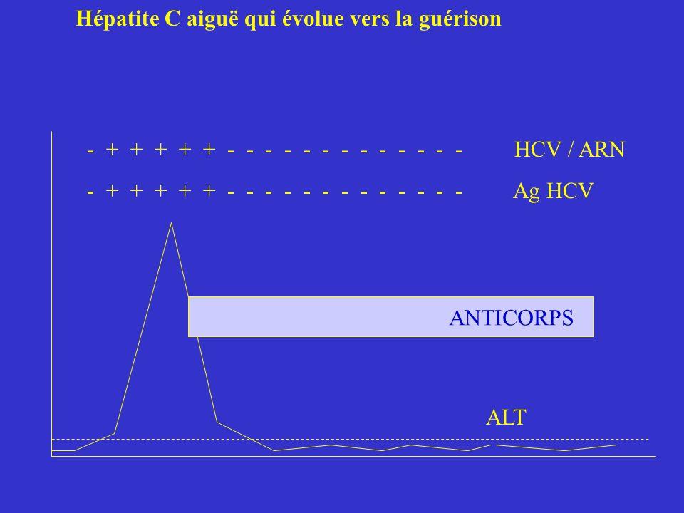 Hépatite C aiguë qui évolue vers la guérison - + + + + + - - - - - - - - - - - - - HCV / ARN - + + + + + - - - - - - - - - - - - - Ag HCV ALT ANTICORP