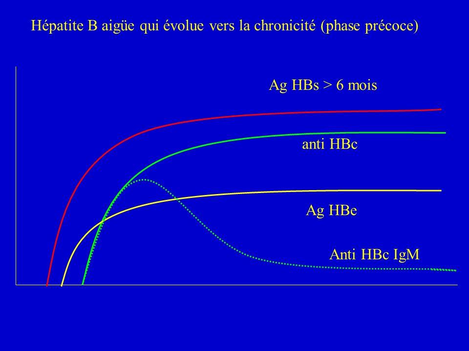 Hépatite B aigüe qui évolue vers la chronicité (phase précoce) Ag HBs > 6 mois anti HBc Ag HBe Anti HBc IgM