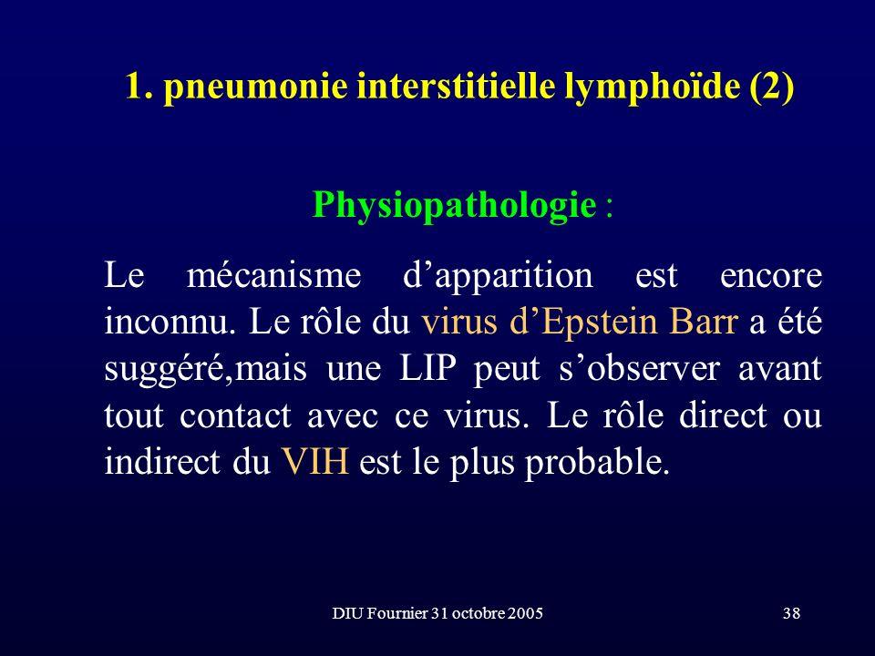 DIU Fournier 31 octobre 200538 1. pneumonie interstitielle lymphoïde (2) Physiopathologie : Le mécanisme dapparition est encore inconnu. Le rôle du vi