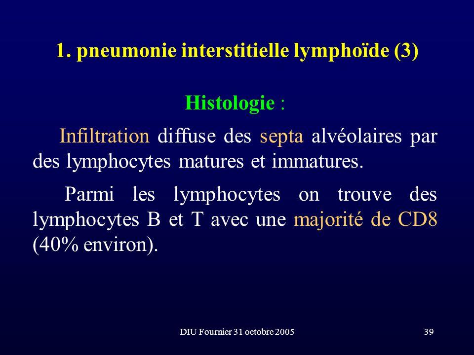 DIU Fournier 31 octobre 200539 1. pneumonie interstitielle lymphoïde (3) Histologie : Infiltration diffuse des septa alvéolaires par des lymphocytes m