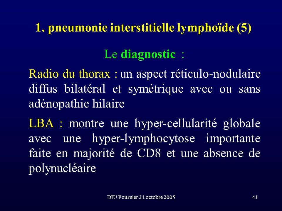 DIU Fournier 31 octobre 200541 1. pneumonie interstitielle lymphoïde (5) Le diagnostic : Radio du thorax : un aspect réticulo-nodulaire diffus bilatér