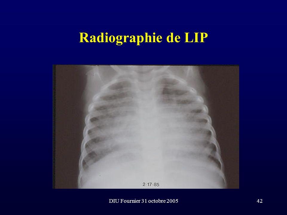 DIU Fournier 31 octobre 200542 Radiographie de LIP