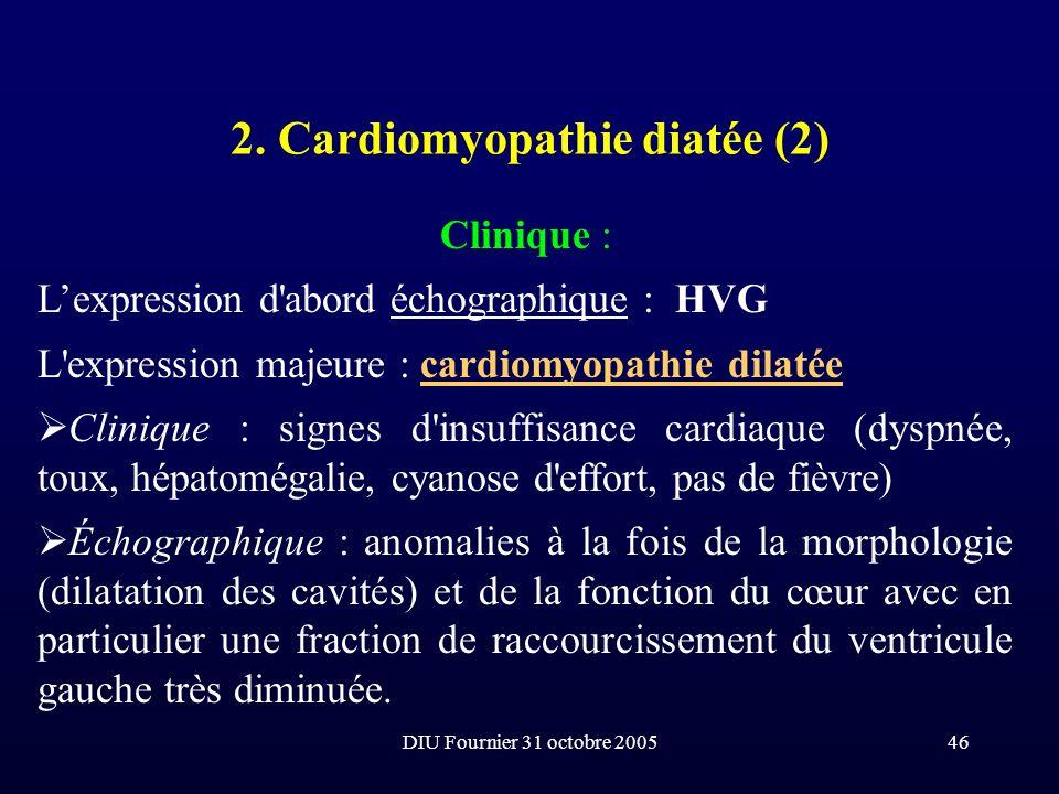 DIU Fournier 31 octobre 200546 2. Cardiomyopathie diatée (2) Clinique : Lexpression d'abord échographique : HVG L'expression majeure : cardiomyopathie