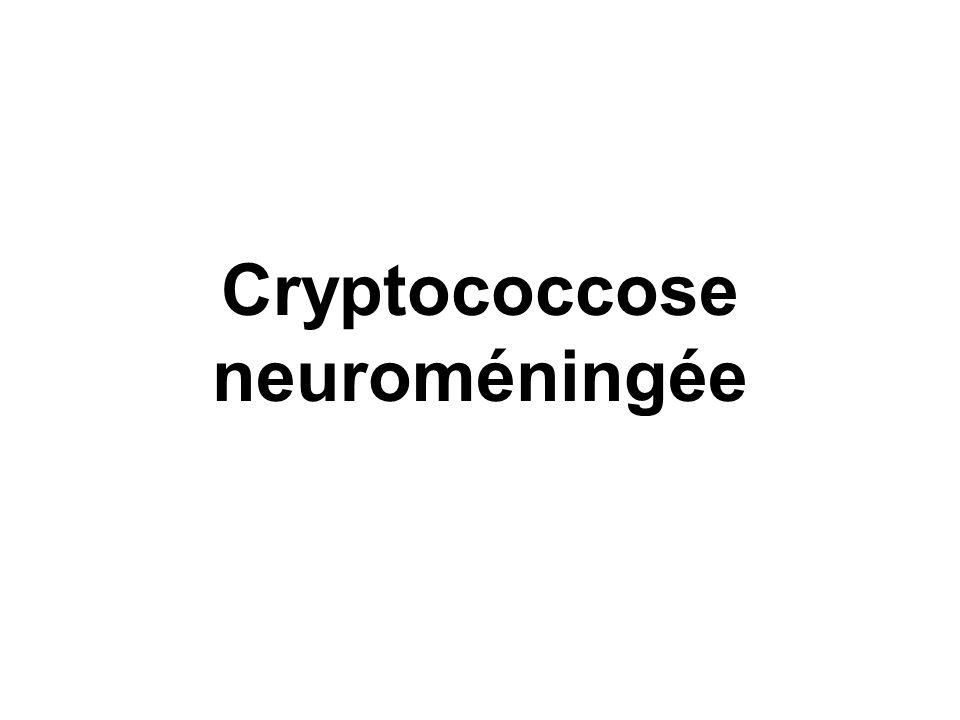 Cryptococcose neuroméningée