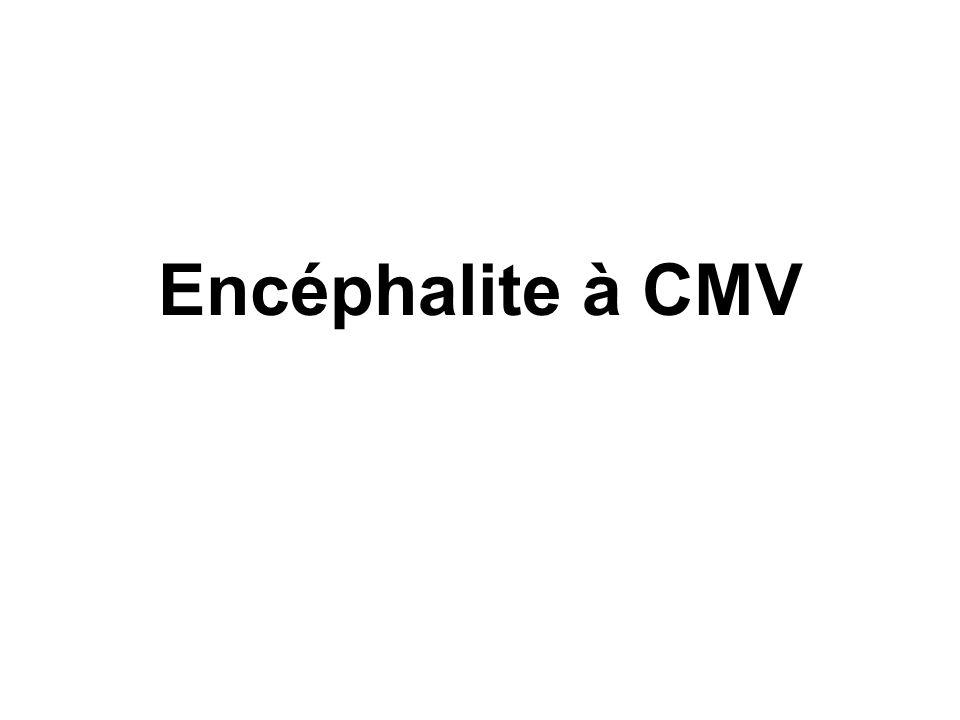 Encéphalite à CMV