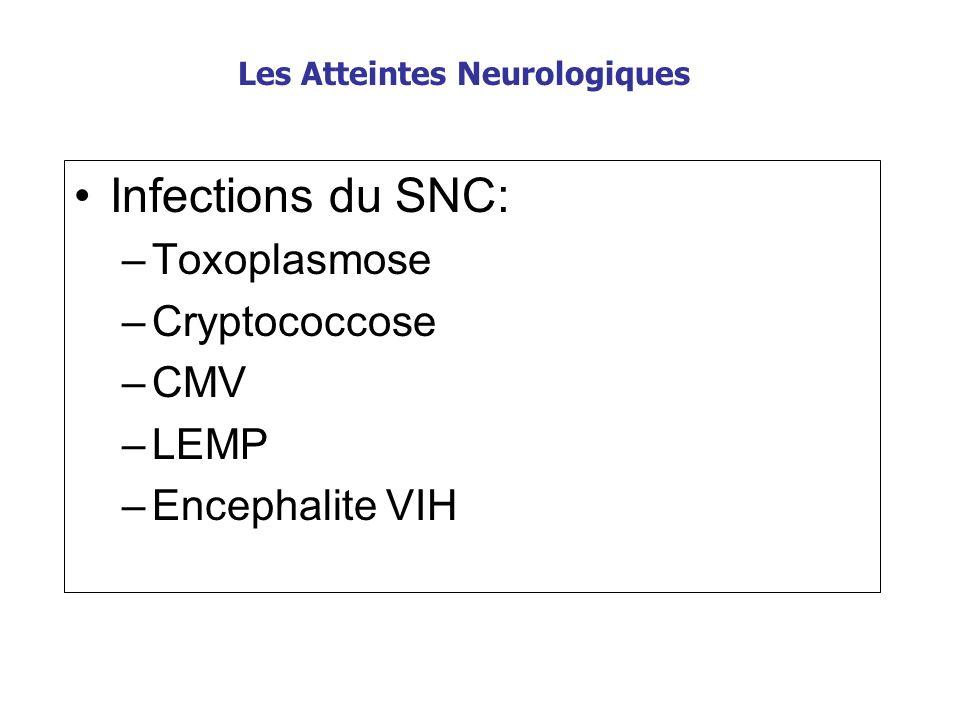 Les Atteintes Neurologiques Infections du SNC: –Toxoplasmose –Cryptococcose –CMV –LEMP –Encephalite VIH