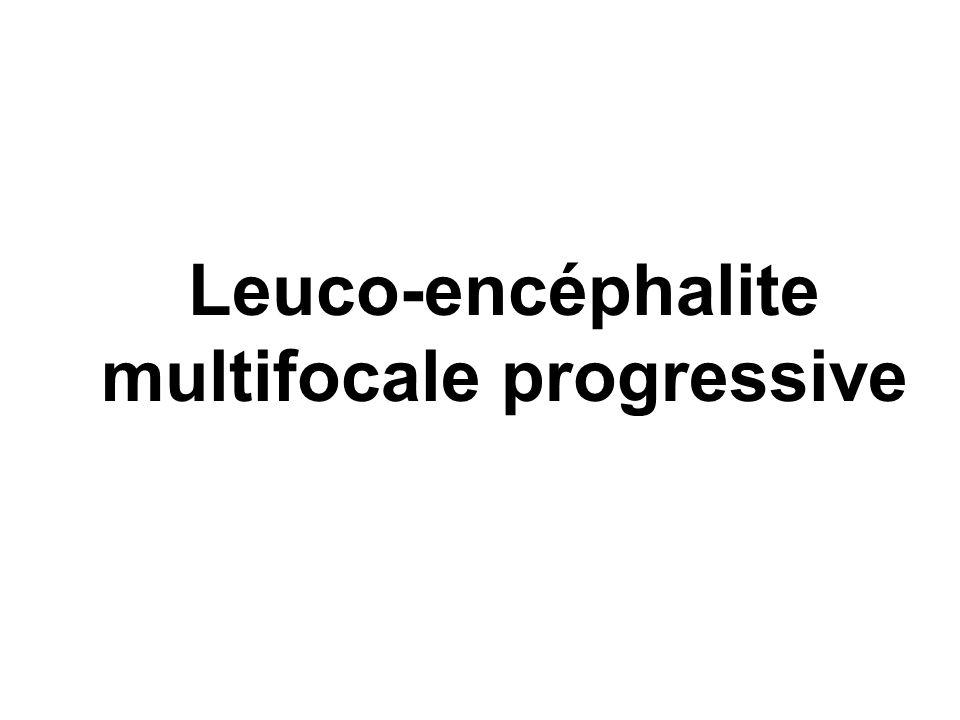 Leuco-encéphalite multifocale progressive