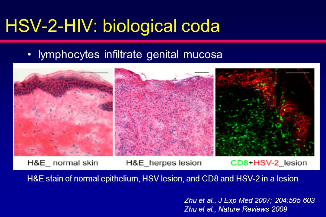 HSV-2-HIV: biological coda lymphocytes infiltrate genital mucosa H&E stain of normal epithelium, HSV lesion, and CD8 and HSV-2 in a lesion Zhu et al.,