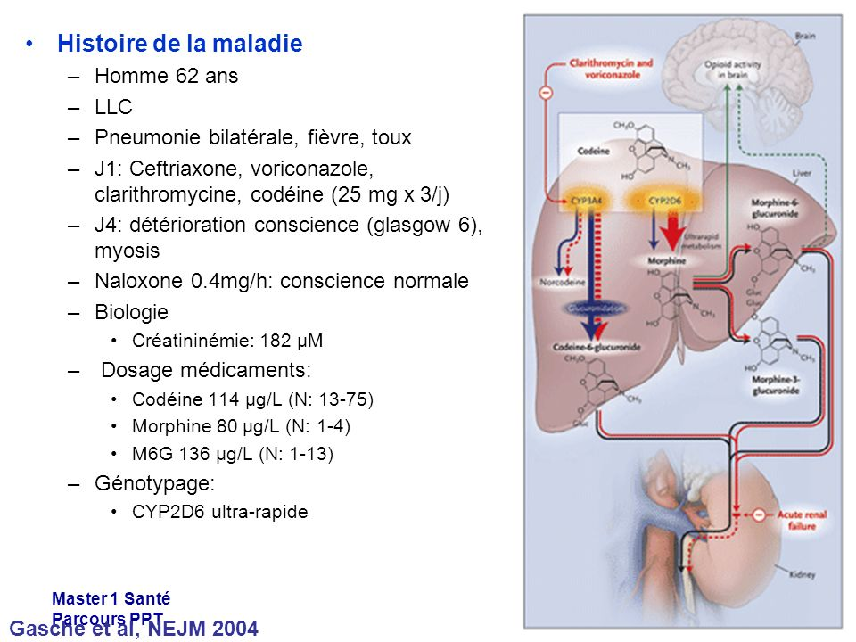 Master 1 Santé Parcours PPT Histoire de la maladie –Homme 62 ans –LLC –Pneumonie bilatérale, fièvre, toux –J1: Ceftriaxone, voriconazole, clarithromycine, codéine (25 mg x 3/j) –J4: détérioration conscience (glasgow 6), myosis –Naloxone 0.4mg/h: conscience normale –Biologie Créatininémie: 182 µM – Dosage médicaments: Codéine 114 µg/L (N: 13-75) Morphine 80 µg/L (N: 1-4) M6G 136 µg/L (N: 1-13) –Génotypage: CYP2D6 ultra-rapide Gasche et al, NEJM 2004