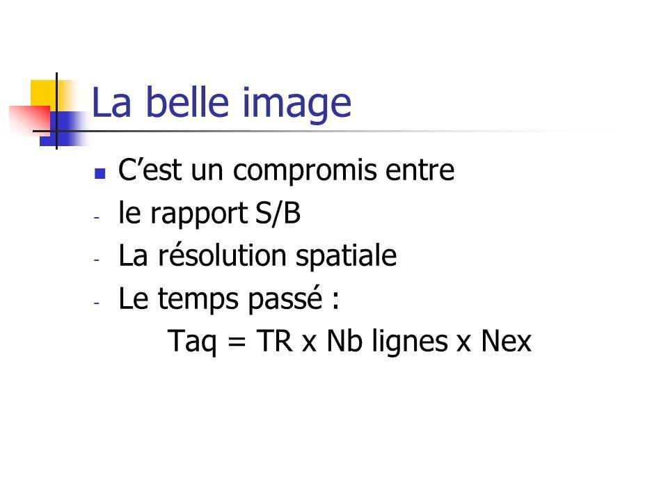 La belle image Cest un compromis entre - le rapport S/B - La résolution spatiale - Le temps passé : Taq = TR x Nb lignes x Nex