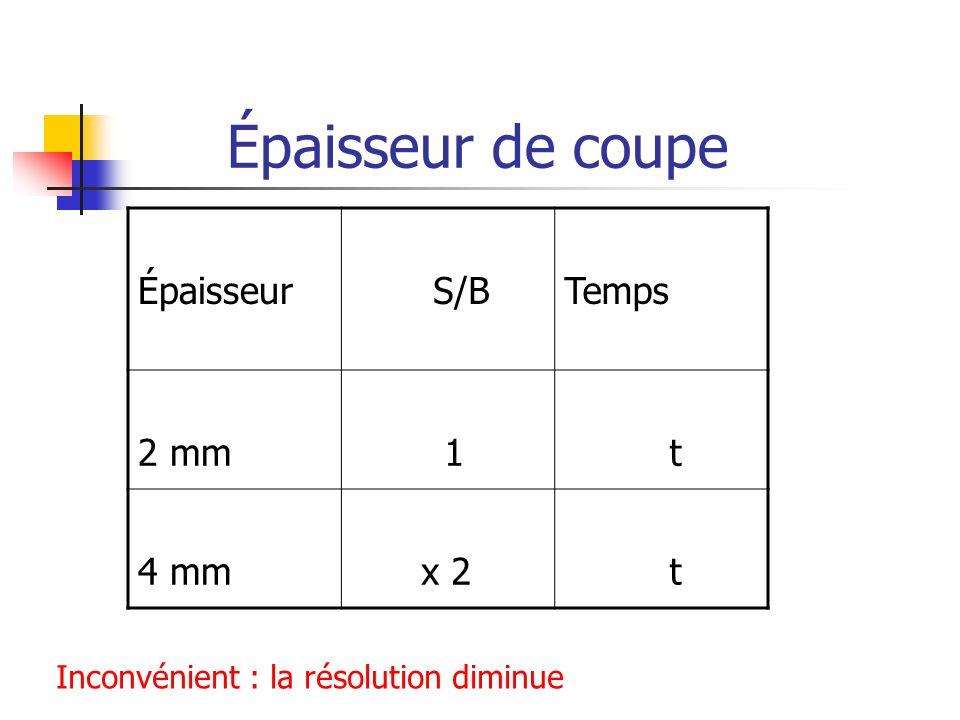 Épaisseur de coupe Épaisseur S/BTemps 2 mm 1 t 4 mm x 2 t Inconvénient : la résolution diminue