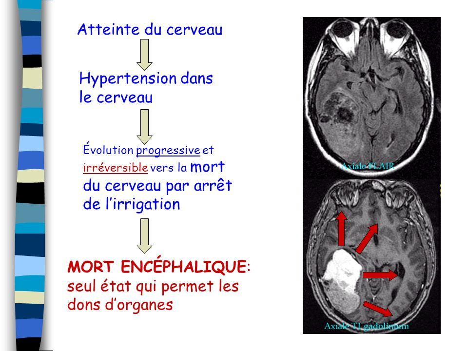Atteinte du cerveau Hypertension dans le cerveau Évolution progressive et irréversible vers la mort du cerveau par arrêt de lirrigation MORT ENCÉPHALIQUE: seul état qui permet les dons dorganes