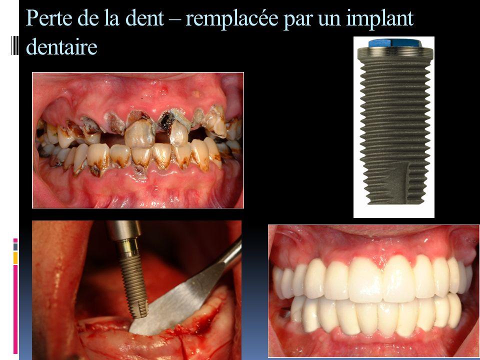 Perte de la dent – remplacée par un implant dentaire