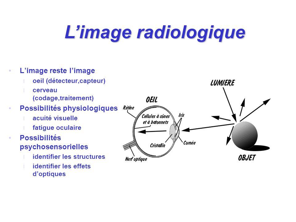 Limage reste limage l oeil (détecteur,capteur) l cerveau (codage,traitement) Possibilités physiologiques l acuité visuelle l fatigue oculaire Possibil