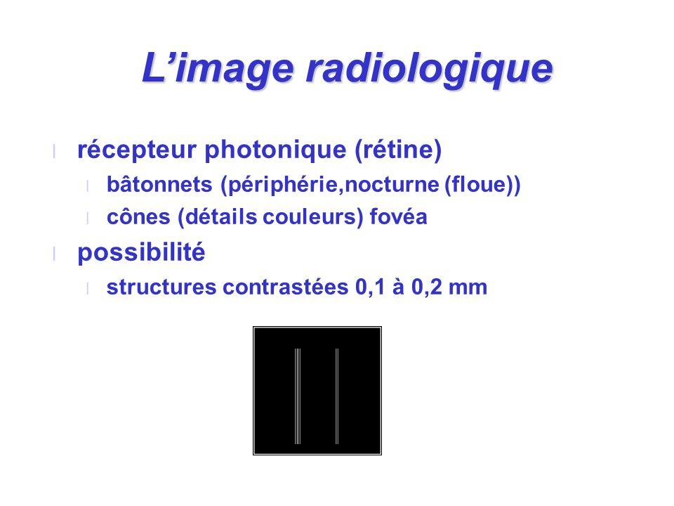 l récepteur photonique (rétine) l bâtonnets (périphérie,nocturne (floue)) l cônes (détails couleurs) fovéa l possibilité l structures contrastées 0,1