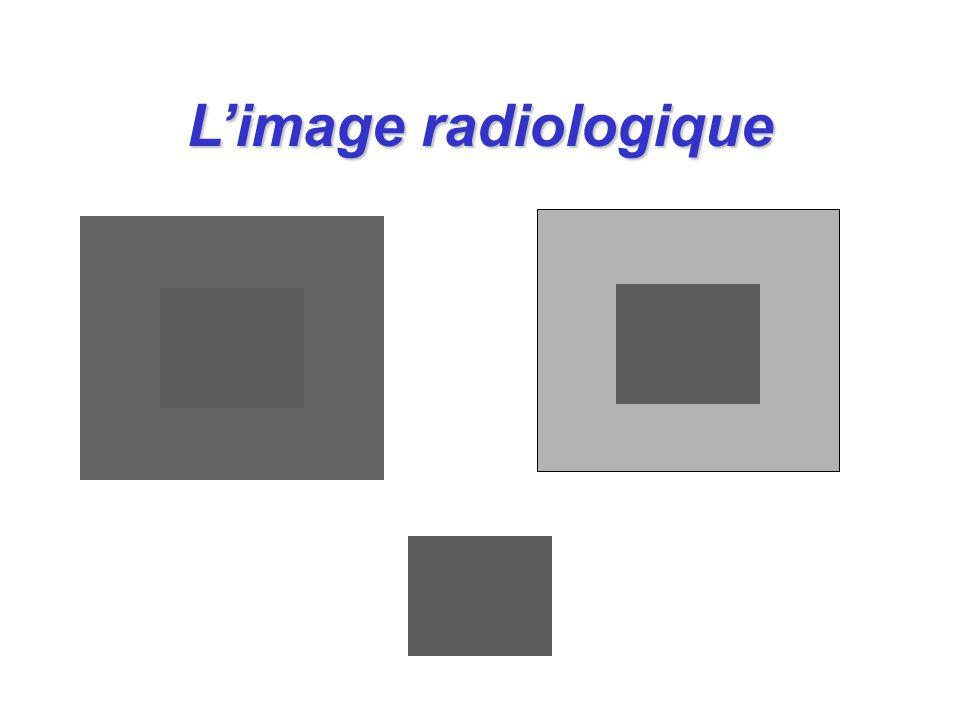 l La vision est un appareil radiologique complexe l Loeil à une capacité de détection limitée l L évaluation dun cliché est un acte volontaire l Si on ne contrôle pas loeil l il verra toujours quelque chose l interprétation cérébrale pas toujours adéquate Limage radiologique