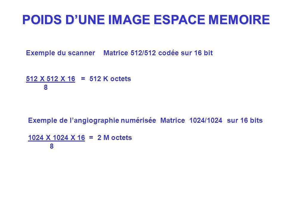 POIDS DUNE IMAGE ESPACE MEMOIRE Exemple du scanner Matrice 512/512 codée sur 16 bit 512 X 512 X 16 = 512 K octets 8 Exemple de langiographie numérisée