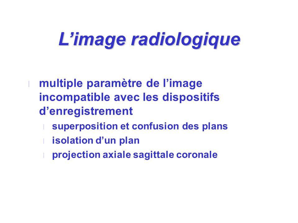 Limage radiologique l multiple paramètre de limage incompatible avec les dispositifs denregistrement l superposition et confusion des plans l isolatio