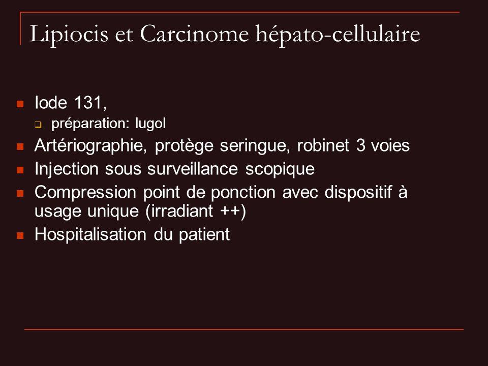 Lipiocis et Carcinome hépato-cellulaire Iode 131, préparation: lugol Artériographie, protège seringue, robinet 3 voies Injection sous surveillance sco